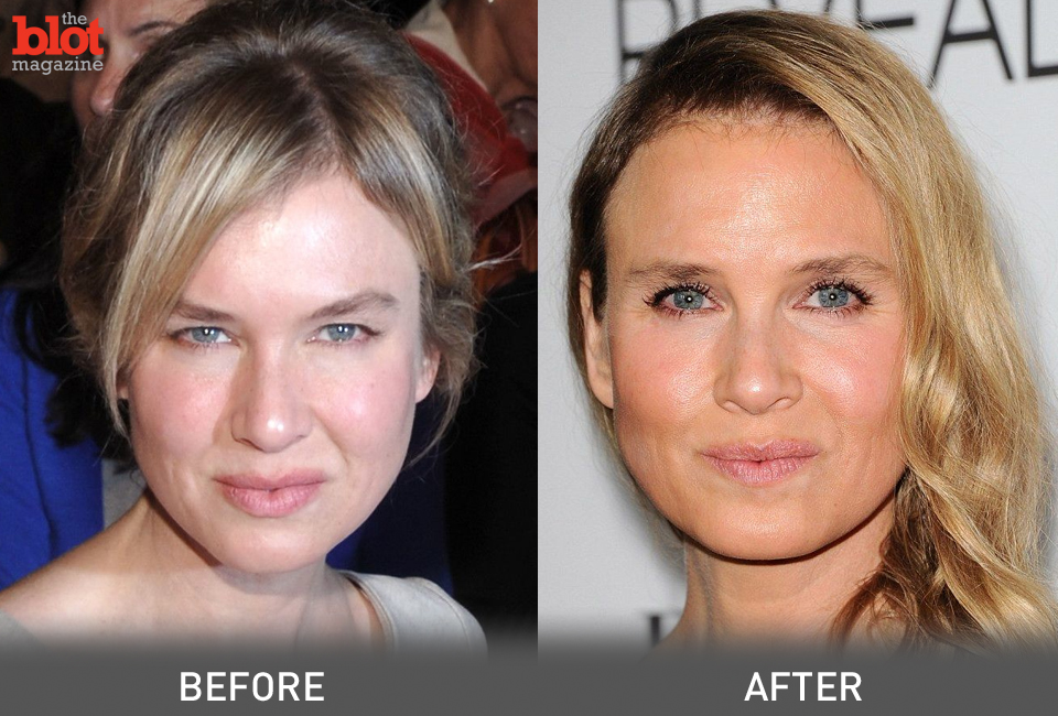 Enough Shut Up About Renee Zellweger S Face Dorri Olds